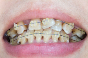 Dental Braces for crooked teeth